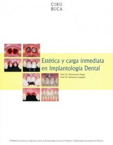 Aesthetics and immediate loading in Oral Implantology